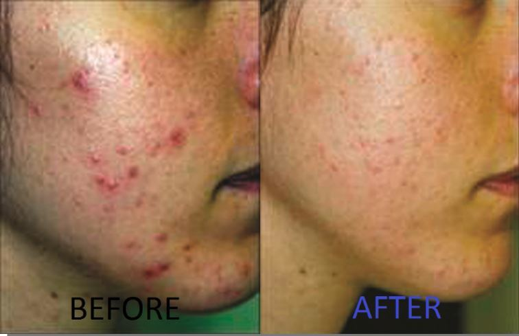 Embarrassing Acne forget all about it – We've got your back