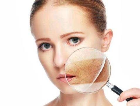Lets talk about pigmentation : prevention and home treatment /part 2